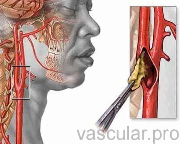 Acidente Vascular Cerebral (AVC)<span class=