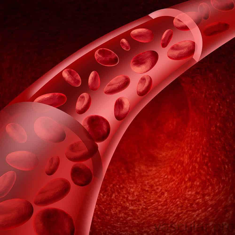 Coágulos Sanguíneos, Trombose Venosa Profunda e Flebite Superficial<span class=