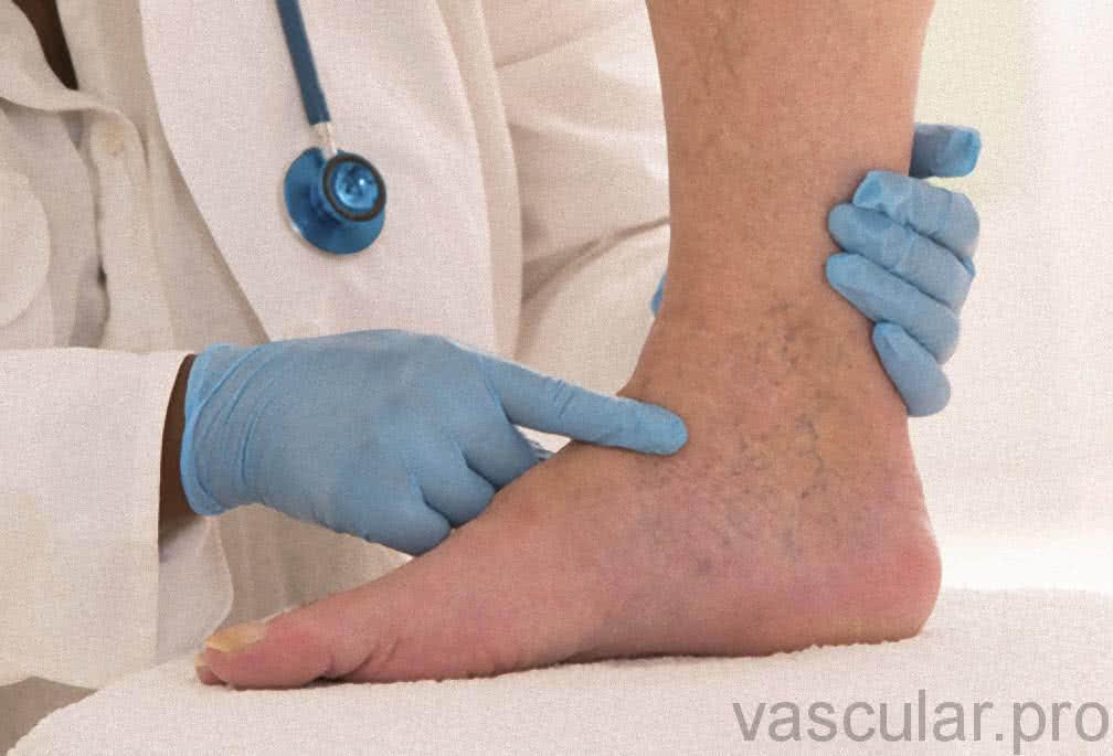 Tratamento Corretivo Da Doença Venosa<span class=