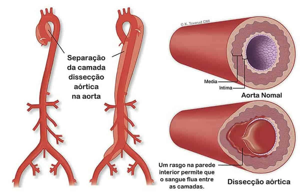 Dissecção de Aorta – Dissecção Aórtica<span class=