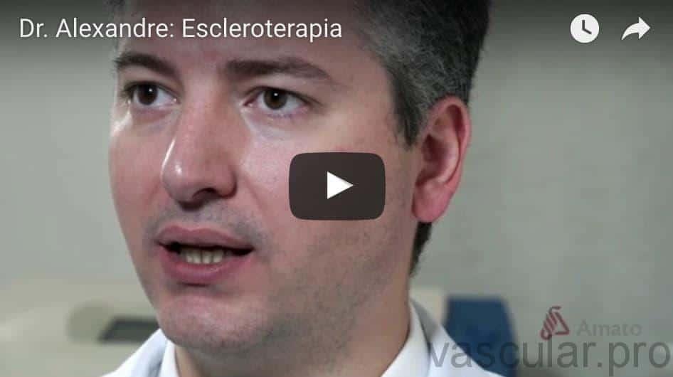Escleroterapia: video sobre aplicação nos vasinhos<span class=