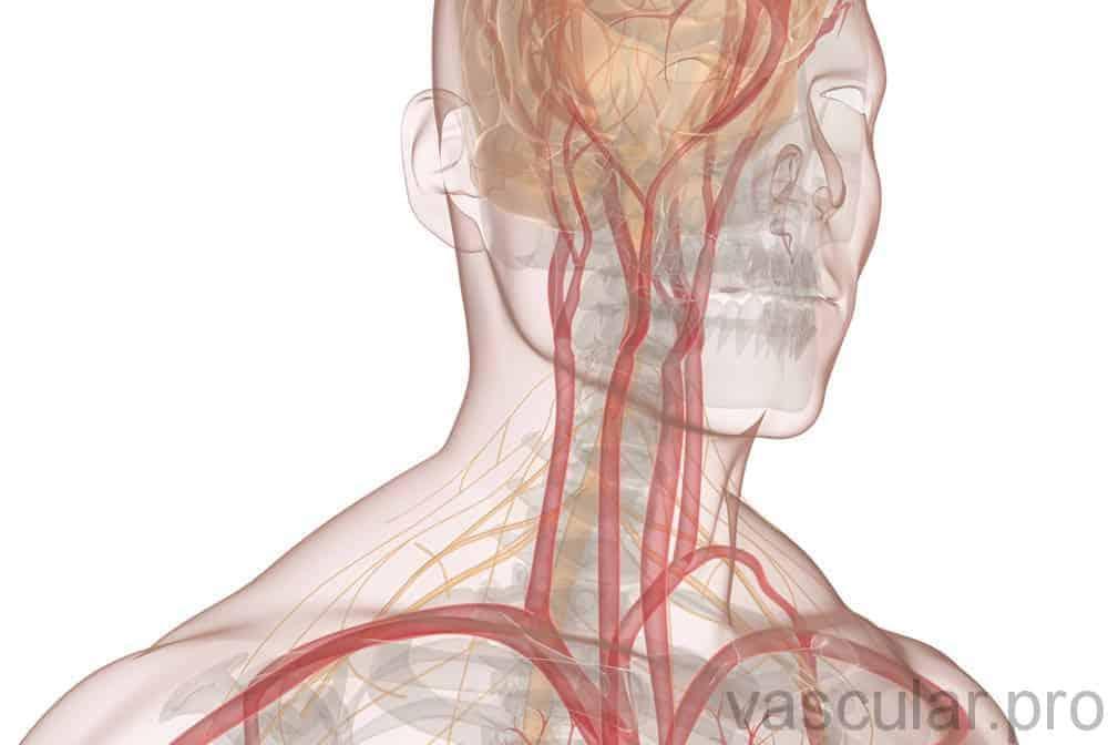 Estenose das artérias carótidas<span class=