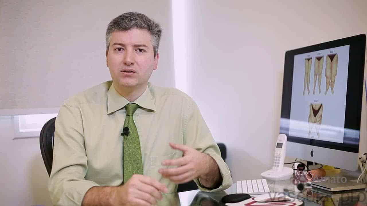 Lipedema: doença crônica do tecido adiposo<span class=