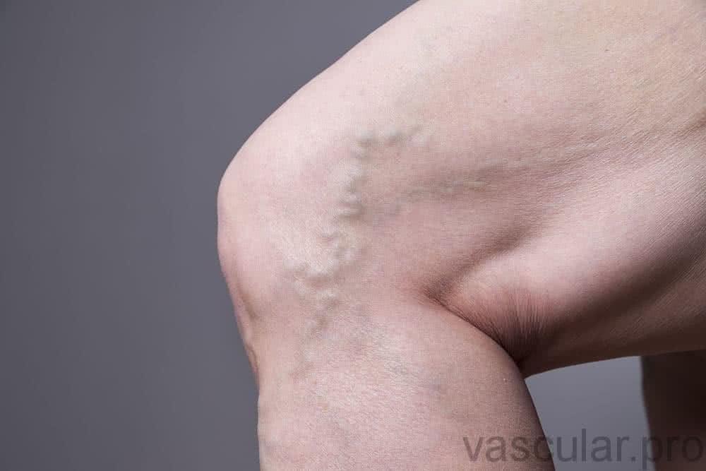 Há tratamentos para varizes?<span class=