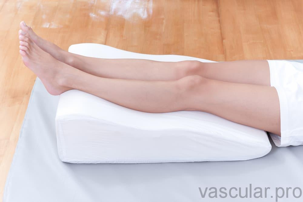 cirurgia venosa de varizes