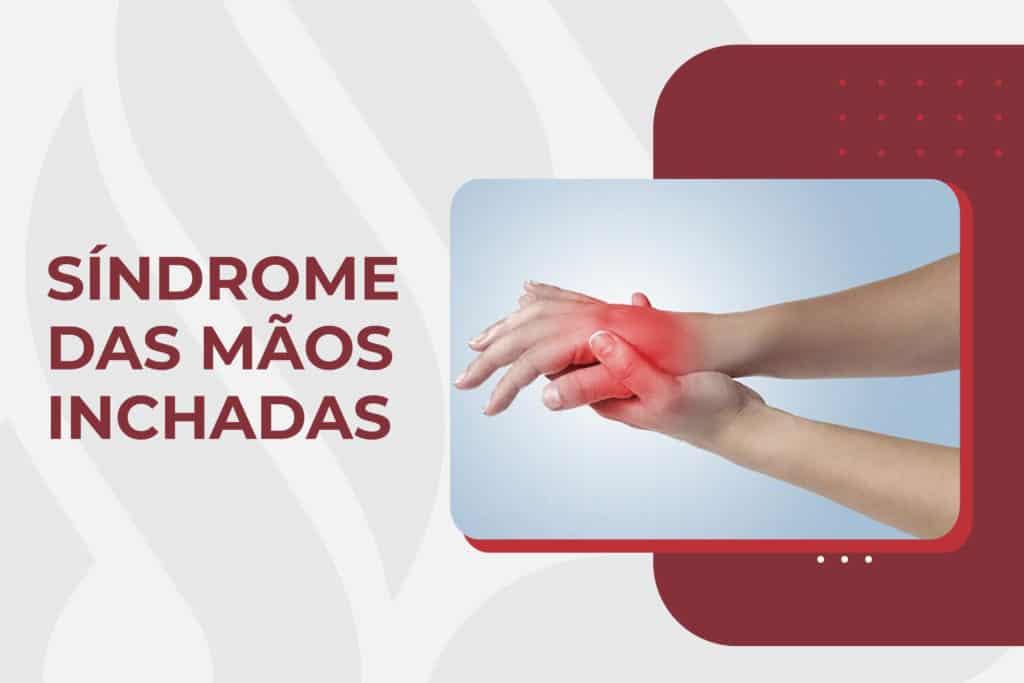 Síndrome das mãos inchadas