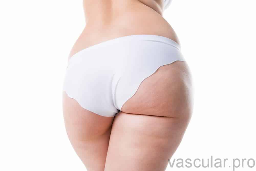 Lipedema: síndrome da gordura dolorosa<span class=