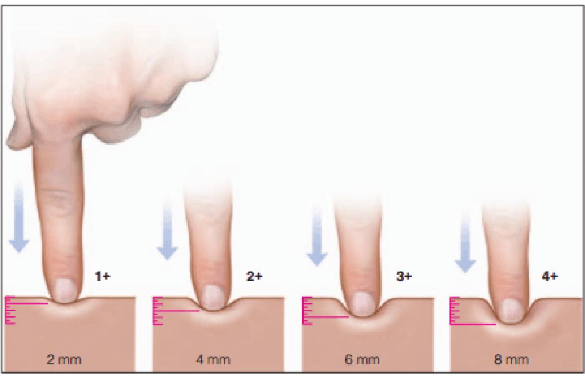 Inchaço nas pernas (edema)<span class=