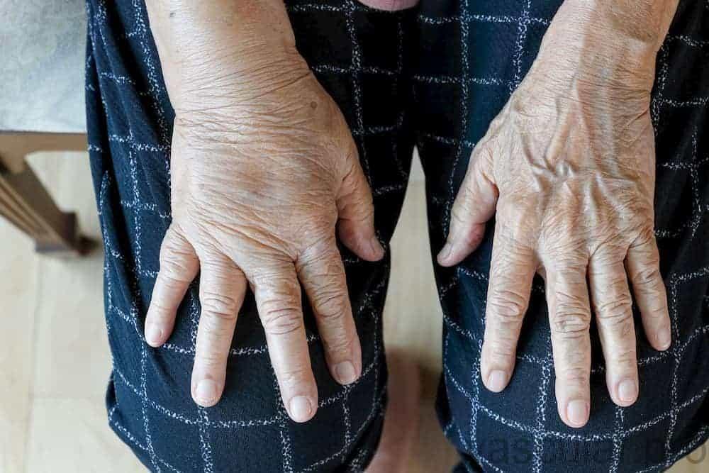 Por que minhas mãos estão inchadas?<span class=