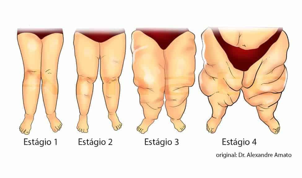 Lipedema. Gordura nas pernas.<span class=