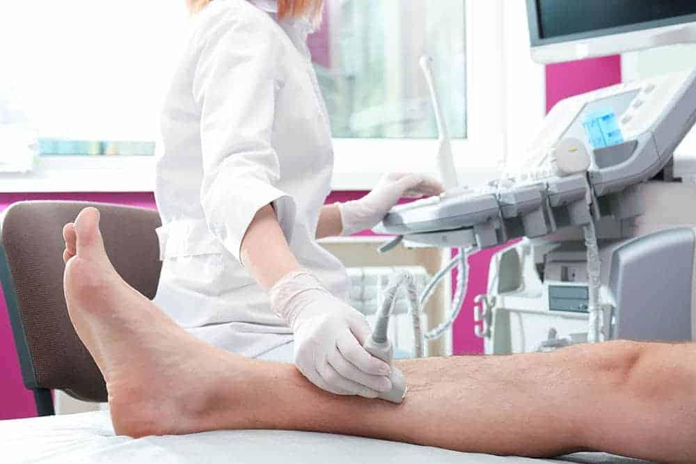 Ultrassonografia vascular<span class=