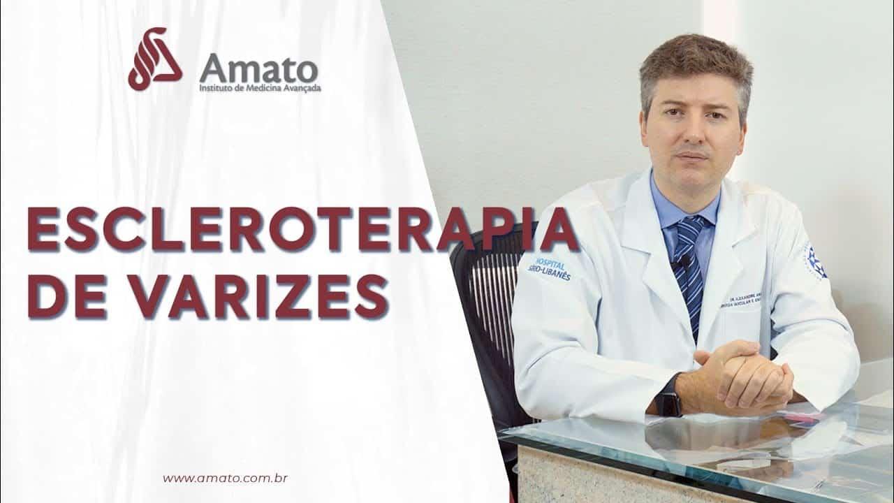 Aplicação e Escleroterapia de Varizes<span class=