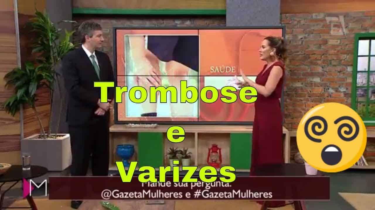 Entrevista sobre Trombose na TV Gazeta, programa Mulheres 26 06 18<span class=