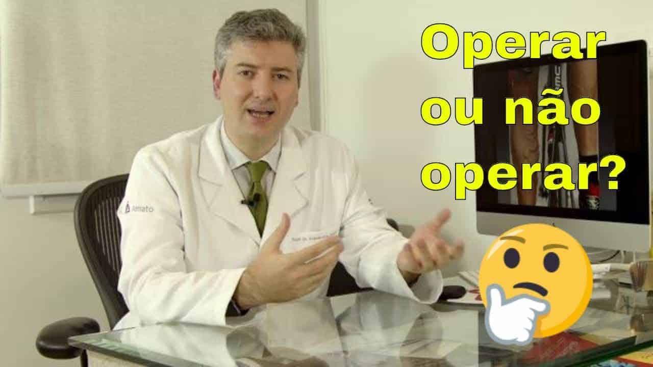 Operar ou não operar varizes? Eis a questão!<span class=