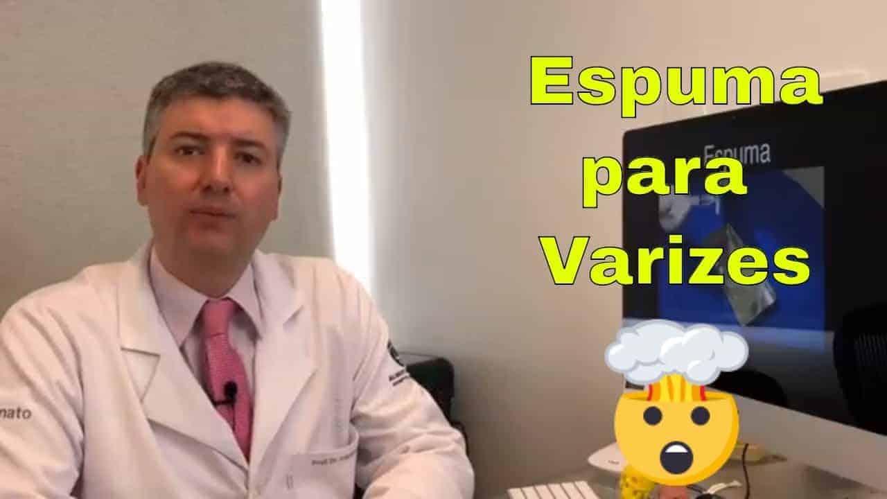 Varizes com Espuma Densa (Tratamento de varizes, tecnica vascular)<span class=