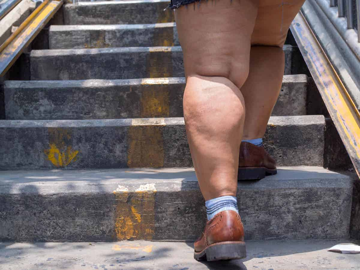 Sintomas do lipedema