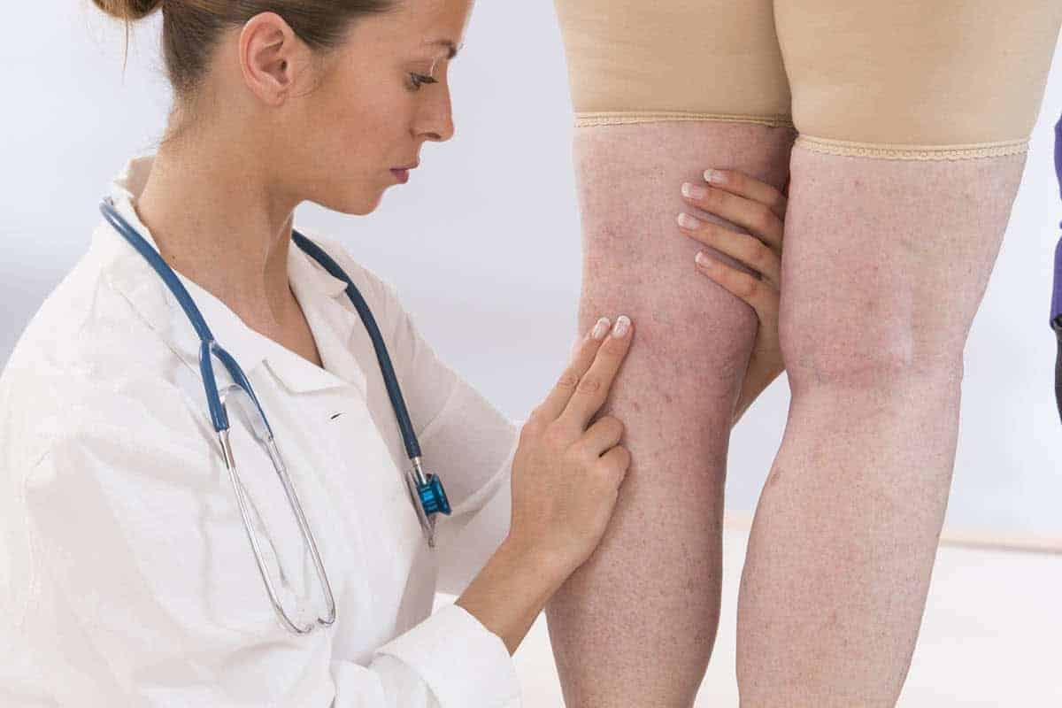 Confira 5 tipos de tratamentos de varizes<span class=