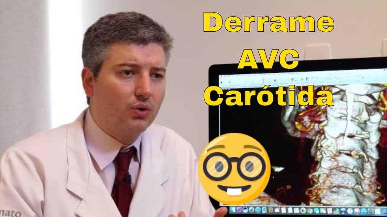 Derrames e a artéria carótida: Dr Alexandre Amato<span class=