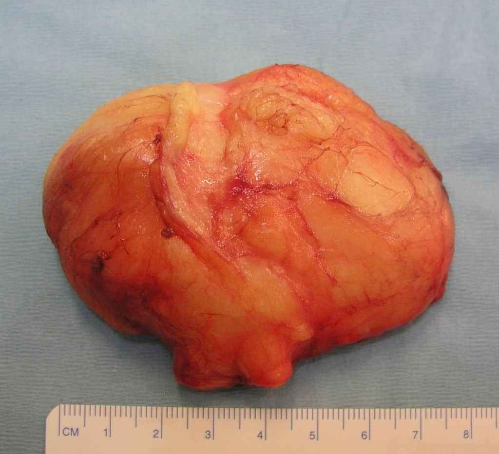 Lipoma ressecado (tumor de gordura)