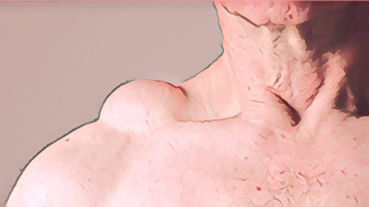 Lipedema não é um tumor de gordura.<span class=